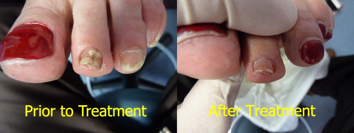 laser-treatment-for-toenail-fungus-2