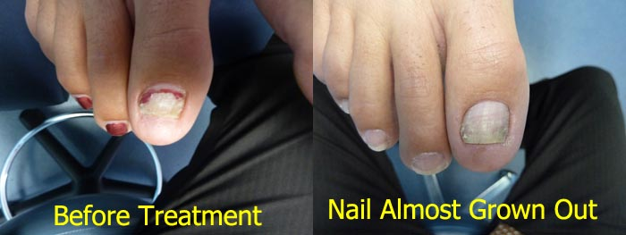 Laser Treatment for toenail fungus | more effective than Loceryl