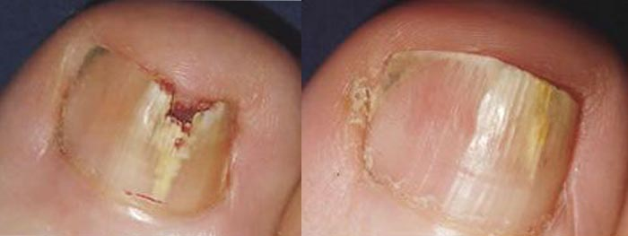 laser-treatment-for-toenail-fungus-5