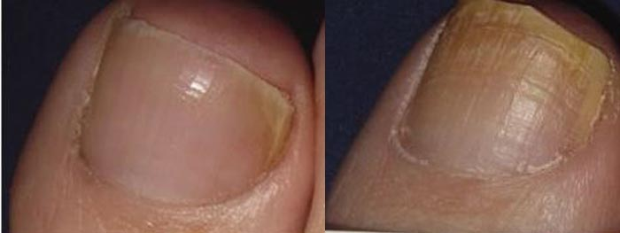 ... laser treatment for nail fungus how does genesisplus work laser light