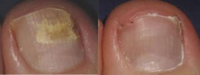 laser-treatment-for-toenail-fungus-7