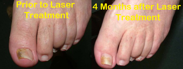 laser-treatment-for-toenail-fungus