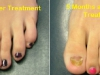 laser-treatment-for-toenail-fungus_0