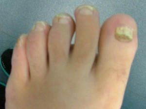 Toe nail Fungal infection