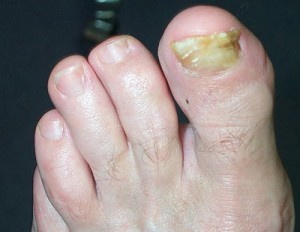 Fungus of a Toe Nail